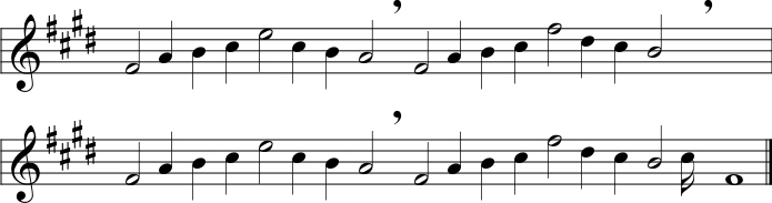 Parlando notation for the simple melody